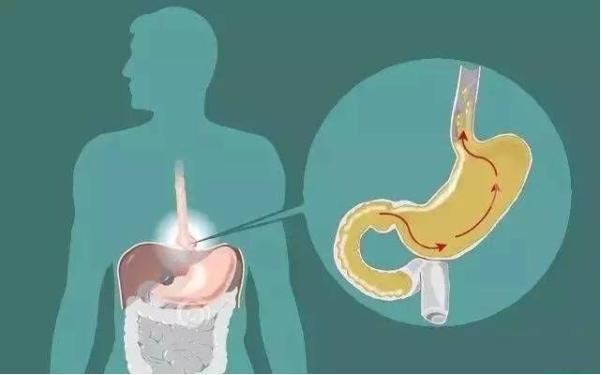 [新聞] 胃食道逆流「殺傷力」太大,及時遠離這3種食物,胃會感謝你