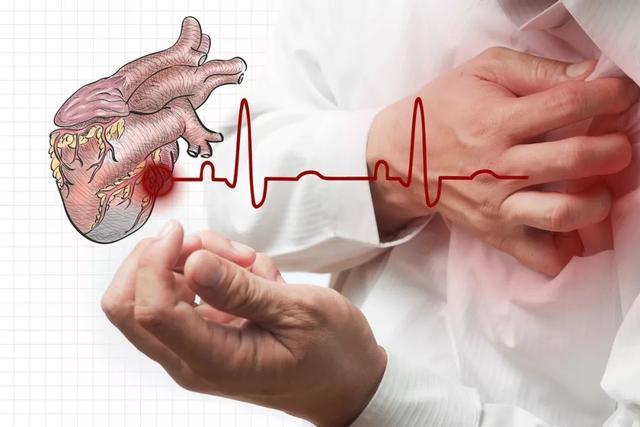 [新聞] 美國大型心臟病臨床研究發現:支架搭橋並不比藥物治療更有效